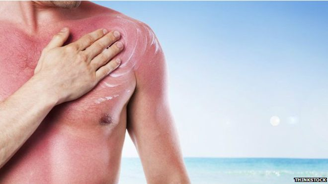 Campaña gratuita de despistaje contra cáncer de piel en playas de Lima