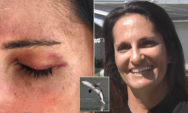 Tiburón salta y golpea a una surfista en la cara